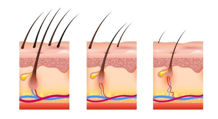 hair follicle miniaturization